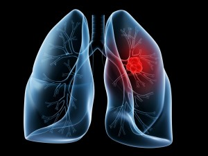 Lung Cancer: Risk factors for non-smokers