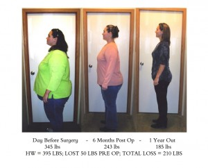 FirstHealth Gastric Bypass Patient