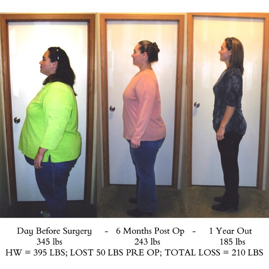 Weight Loss Surgery Before After Photographs Photos