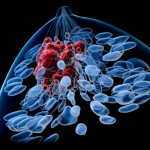 Illustrated x-ray of breast cancer tumor